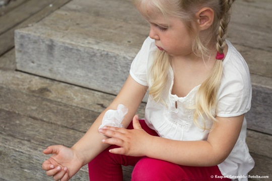 Potentilla – Wirkungsweise von Blutwurz bei Neurodermitis